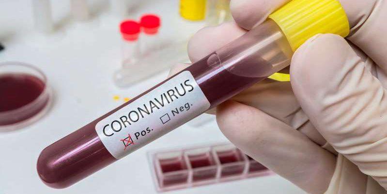 coronavirus-25-casos
